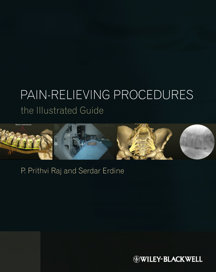 Pain-Relieving Procedures. The Illustrated Guide