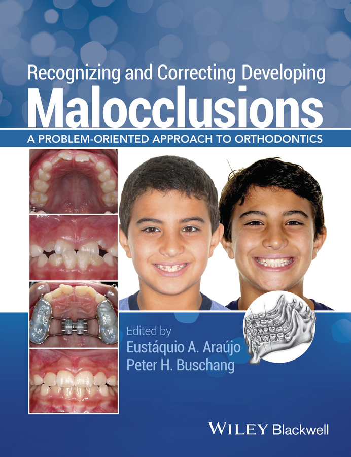 Recognizing and Correcting Developing Malocclusions. A Problem-Oriented Approach to Orthodontics