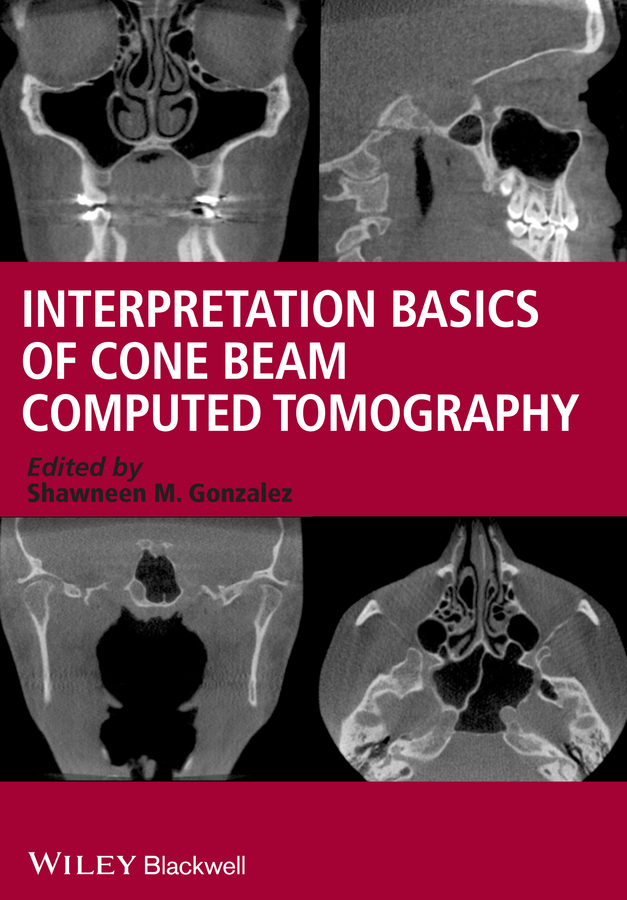 Shawneen Gonzalez M. Interpretation Basics of Cone Beam Computed Tomography 100mw 980nm focusable line laser module gauss beam with power adapter plug and use 16x72mm