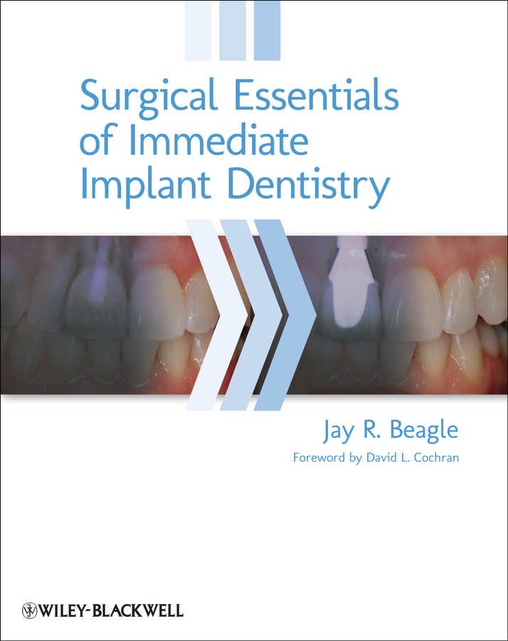 Jay Beagle R. Surgical Essentials of Immediate Implant Dentistry joseph choukroun platelet rich fibrin in regenerative dentistry biological background and clinical indications
