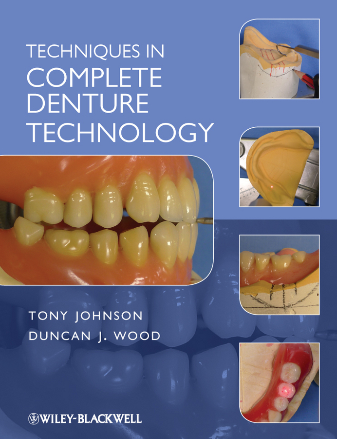 Wood Duncan J. Techniques in Complete Denture Technology knitting the perfect fit essential fully fashioned shaping techniques for designer results