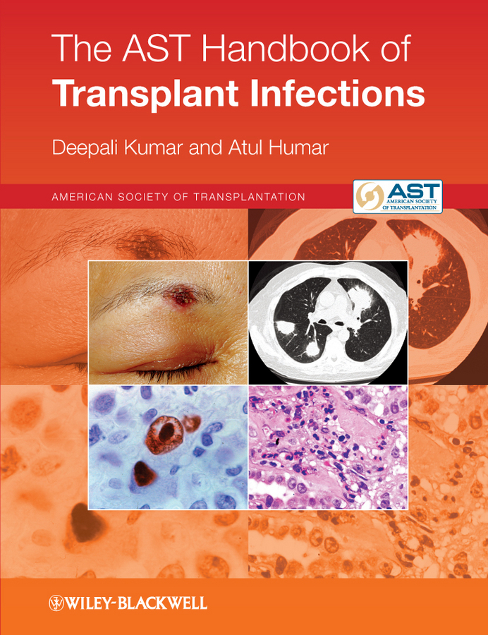 Humar Atul The AST Handbook of Transplant Infections