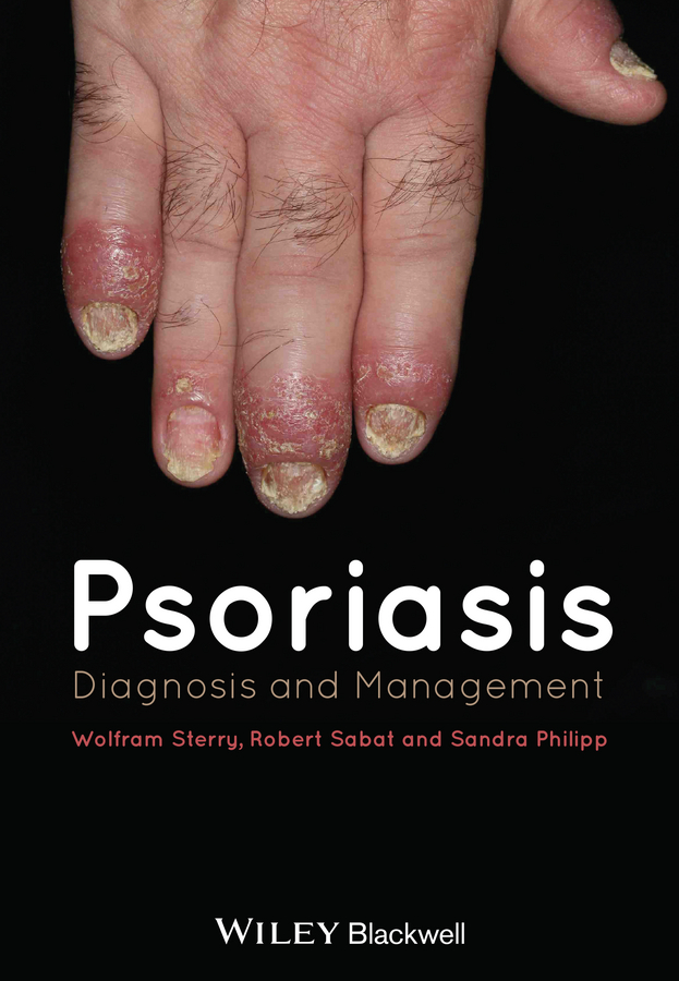 Wolfram Sterry Psoriasis. Diagnosis and Management a maze of death