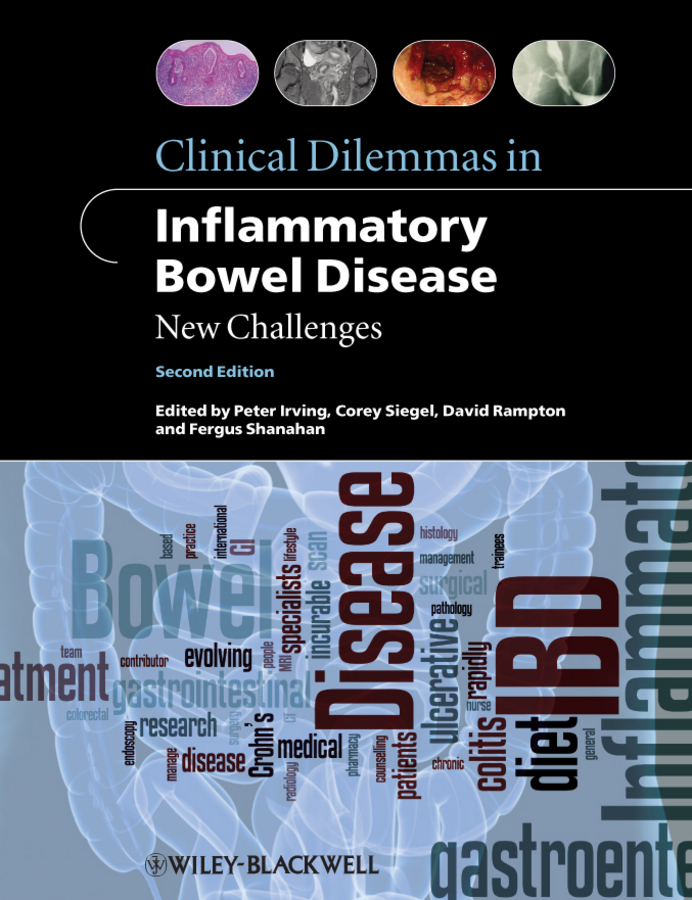 Fergus Shanahan Clinical Dilemmas in Inflammatory Bowel Disease. New Challenges knowledge and innovation dilemmas