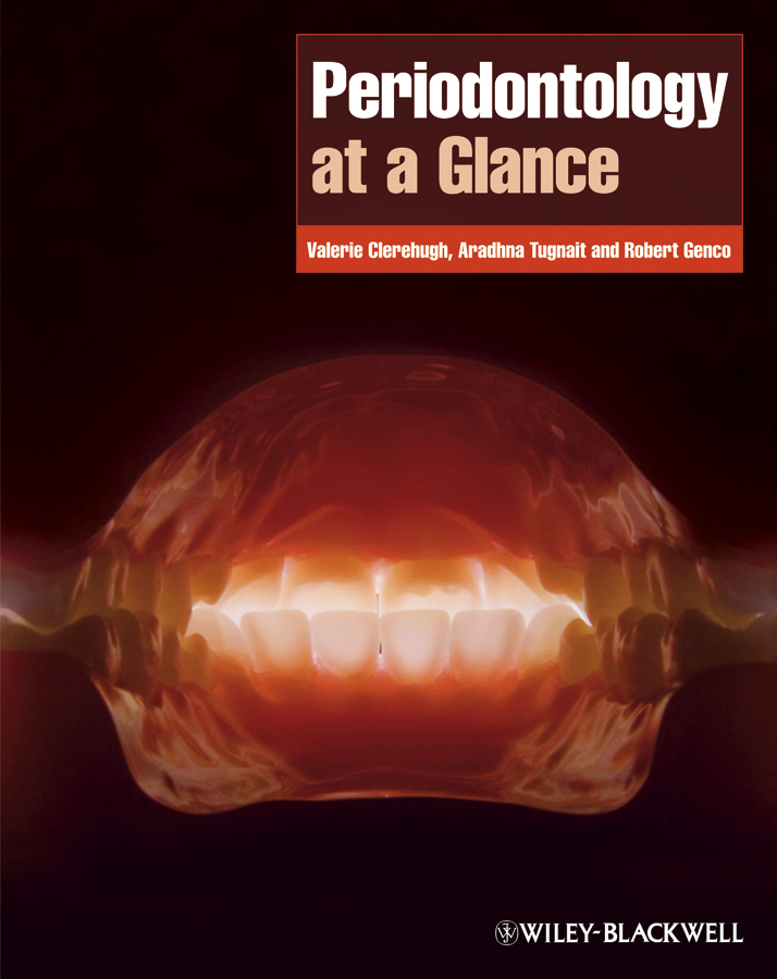 Valerie Clerehugh Periodontology at a Glance