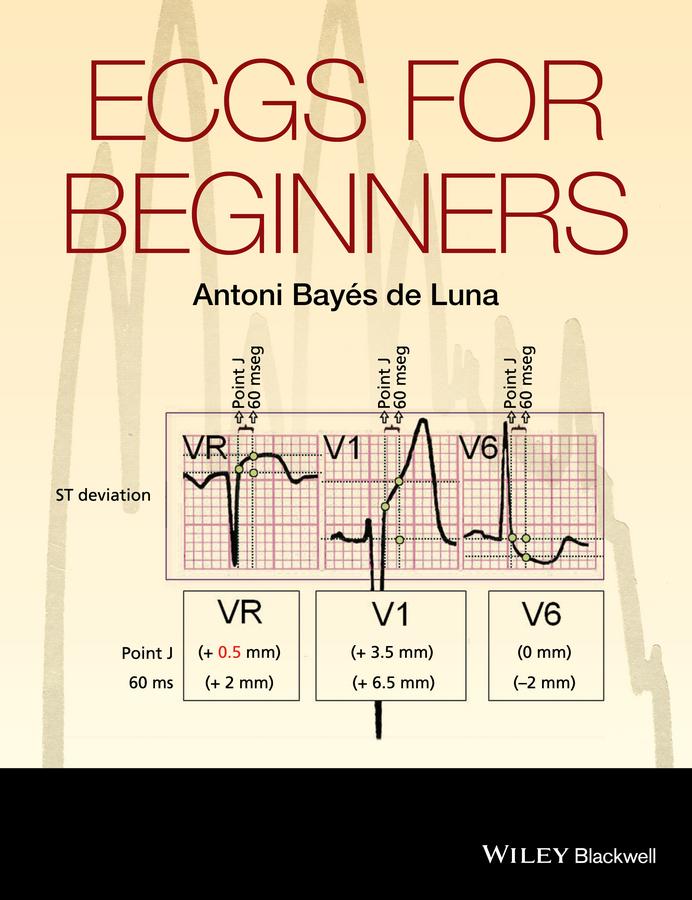 Antoni Bayés de Luna ECGs for Beginners antoni