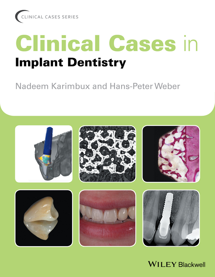 Фото - Nadeem Karimbux Clinical Cases in Implant Dentistry cases