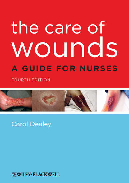 Carol Dealey The Care of Wounds. A Guide for Nurses kursad turksen wound healing stem cells repair and restorations basic and clinical aspects