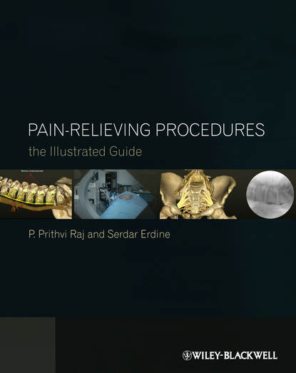 Erdine Serdar Pain-Relieving Procedures. The Illustrated Guide s weiner the medical consumer s guide to the diagnosis tre atment and management of pain