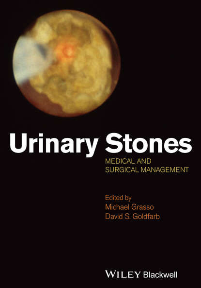 Grasso Michael Urinary Stones. Medical and Surgical Management s weiner the medical consumer s guide to the diagnosis tre atment and management of pain