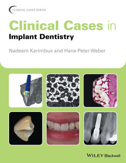 Группа авторов Clinical Cases in Implant Dentistry marcus hines marketing implant dentistry