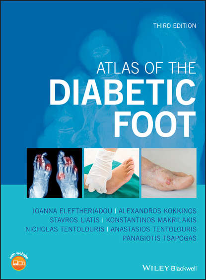 Фото - Panagiotis Tsapogas Atlas of the Diabetic Foot lee sanders a practical manual of diabetic foot care