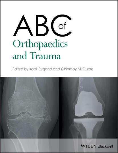 Kapil Sugand ABC of Orthopaedics and Trauma brian h mullis synopsis of orthopaedic trauma management