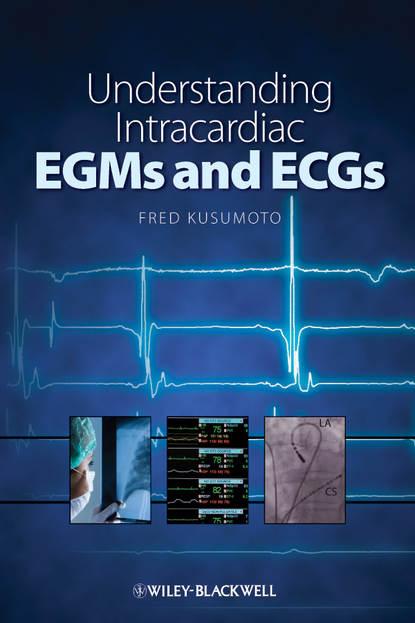 Группа авторов Understanding Intracardiac EGMs and ECGs недорого